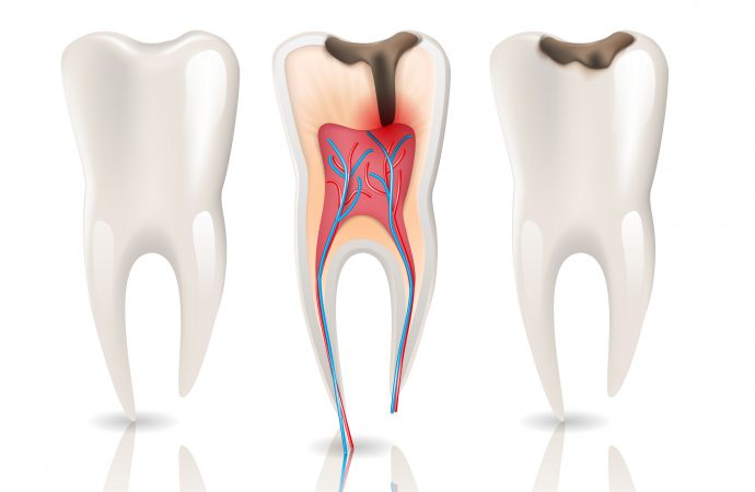 All You Need To Know About Root Canal Procedure