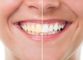 Amazing Facts About Teeth Whitening That You Must Know