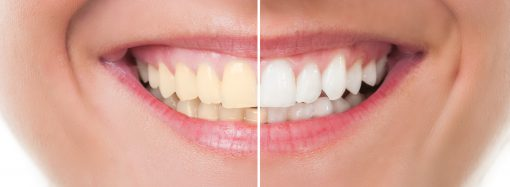 How Often Should I Go To An Orthodontist After My Orthodontic Treatments?
